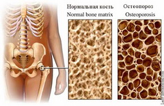 osteopraz